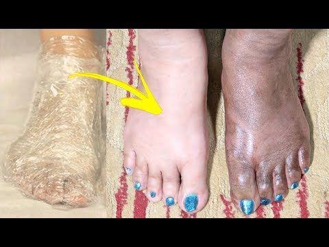 صدقي او لا تصدقي ضعيها على قدميك ربع ساعة فقط و النتيجة تبييض القدمين و تفتيح البشرة مجربة و مضمونة Y Beauty Skin Care Routine Face And Body Beauty Skin Care