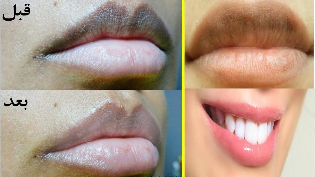 كريم لازالة السواد حول الفم
