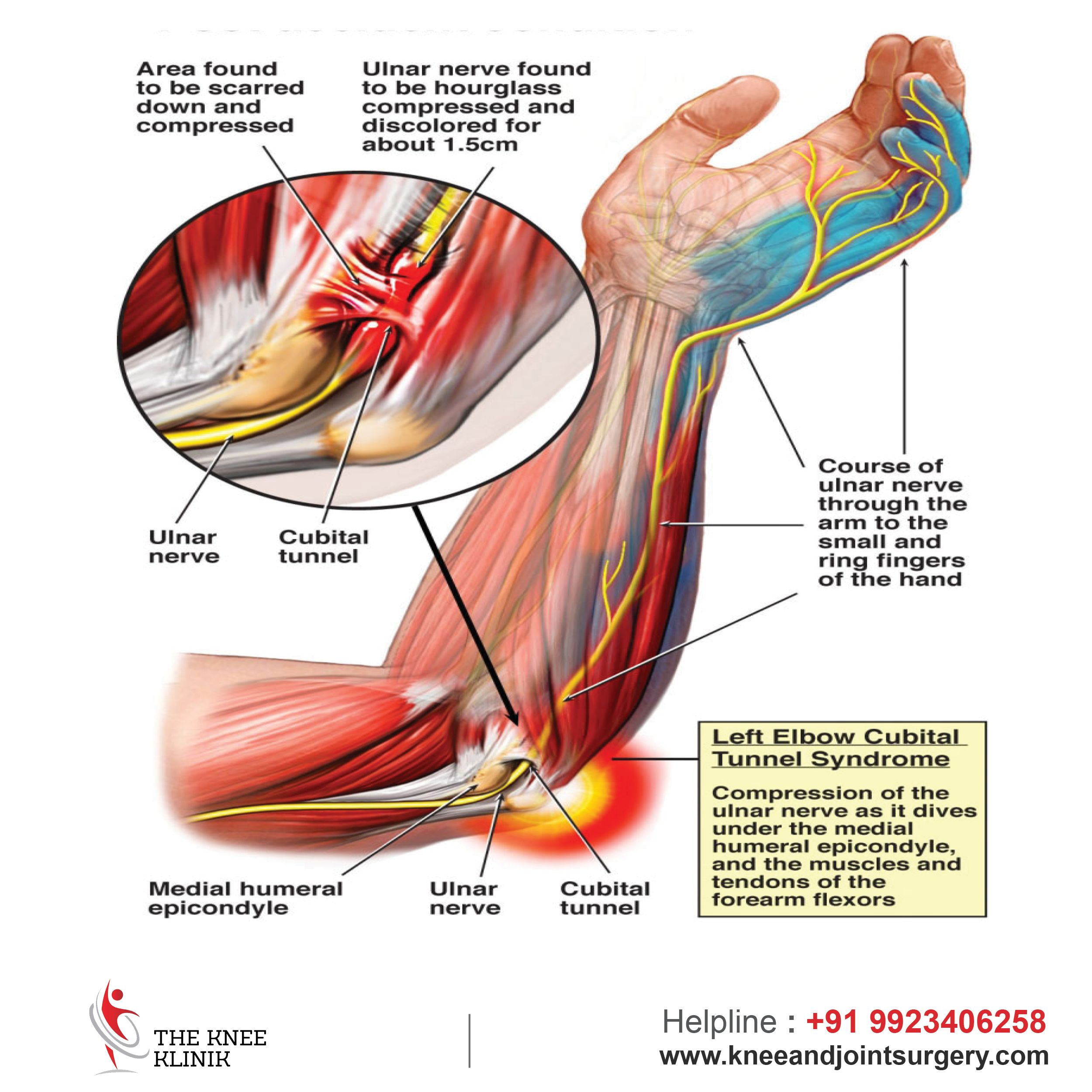 CubitalTunnelSyndrome : It is a condition caused by increased ...