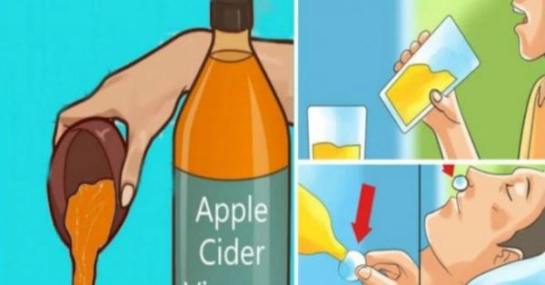 Probablemente, usted ha oído hablar mucho sobre los numerosos beneficios del vinagre de sidra de manzana.