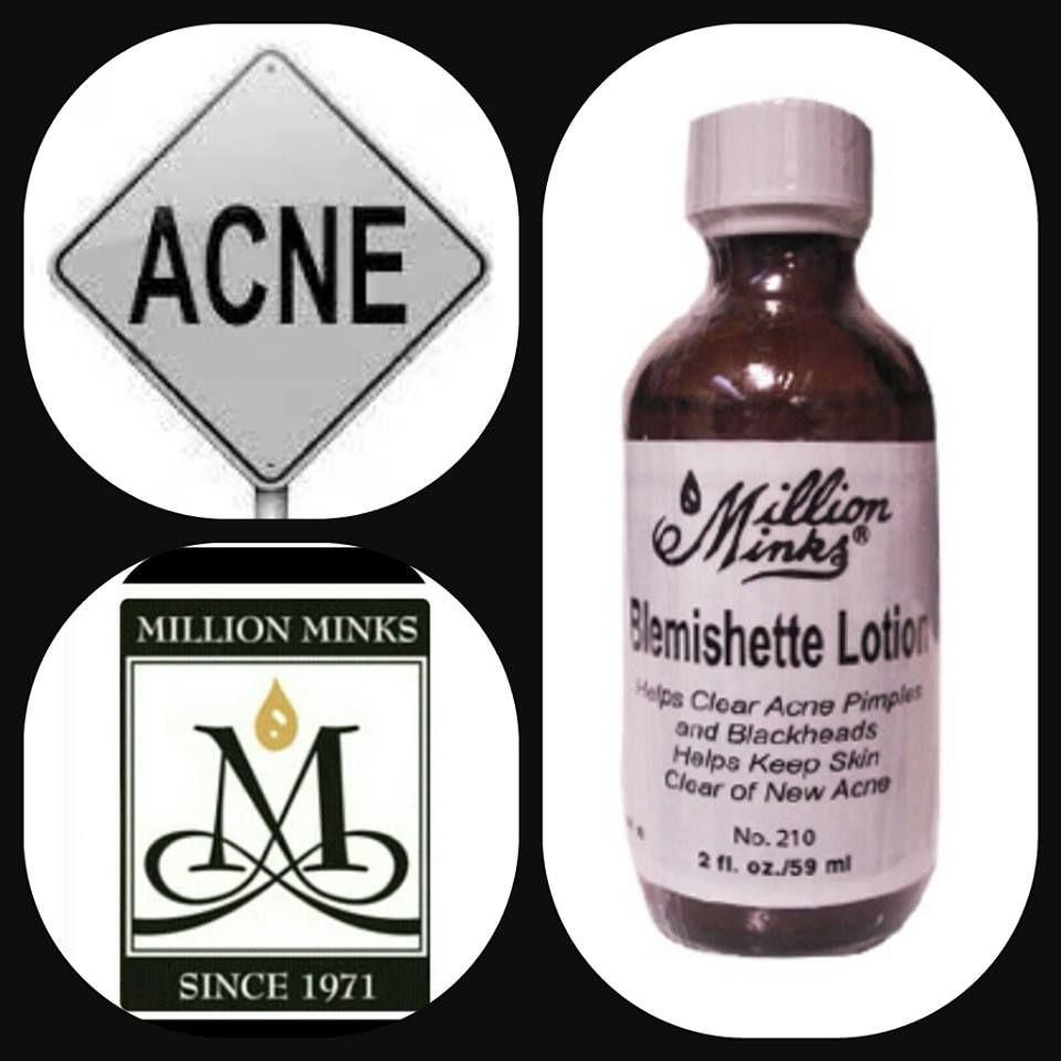 Locion Blemishette 210 39 50 Loción Desinfectante Fuerte Formulada Con Ingredientes Que Son Muy Efectivos En Secar Acne Problem Acne And Pimples Pimples