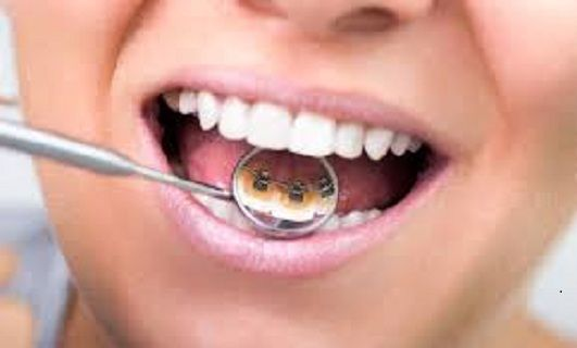 Find Best Dentist In Chicago For Chipped Tooth Repair When A Tooth Is Cracked Disfigured Or Decayed A Composite White Filling Dental Braces Lingual Braces