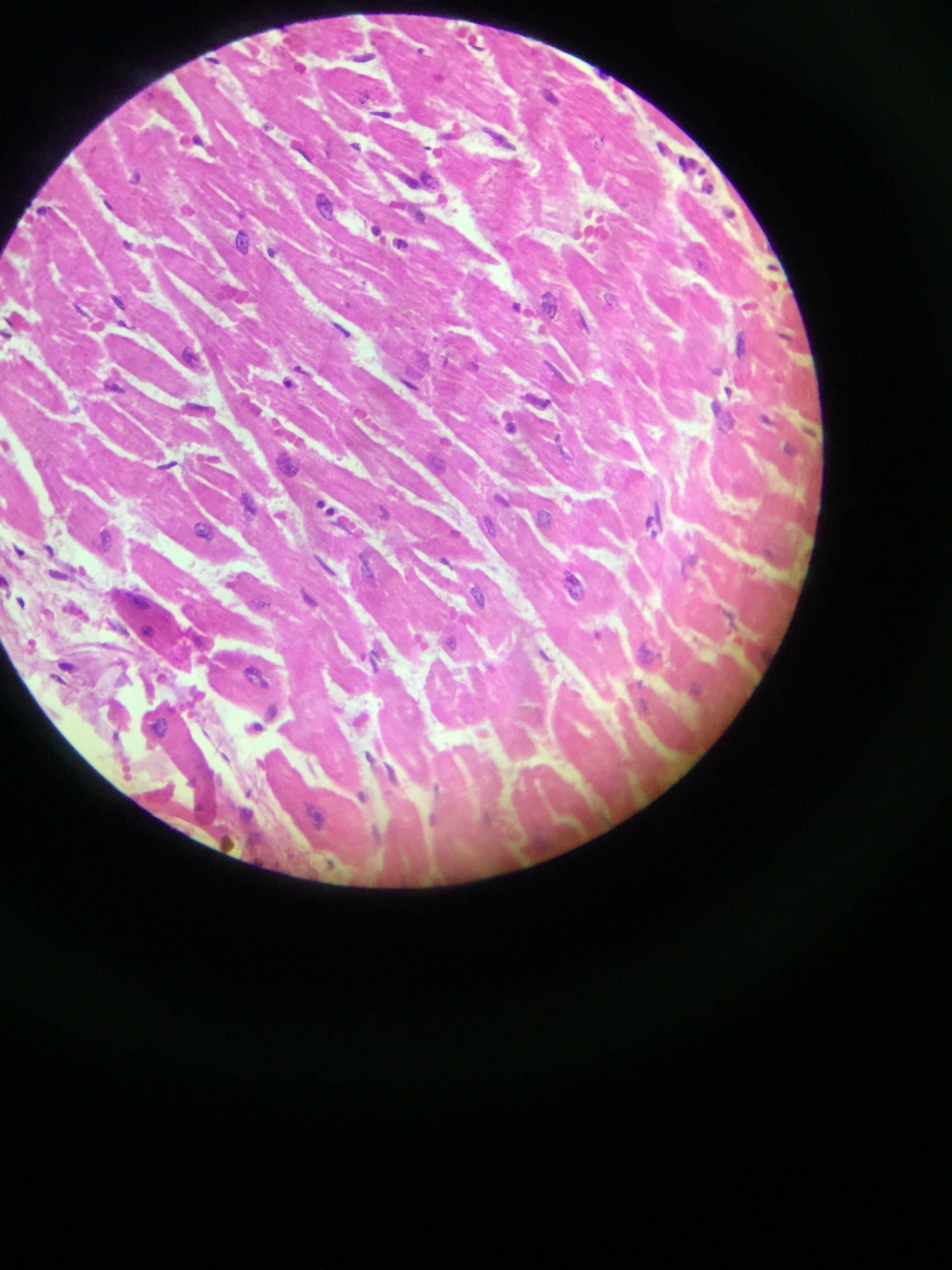 TEJIDO MUSCULAR fibras musculares y vasos sanguineos con eritrocitos ...