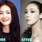 korean plastic surgery before and after celebrities #celebrities #before #and #after #surgery / celebrities before and after surgery , celebrities before and after surgery kim kardashian , celebrities plastic surgery before after , before after surgery celebrities , korean plastic surgery before and after celebrities , bad plastic surgery before and after celebrities , celebrities with plastic surgery before after , celebrities then and now plastic surgery before after