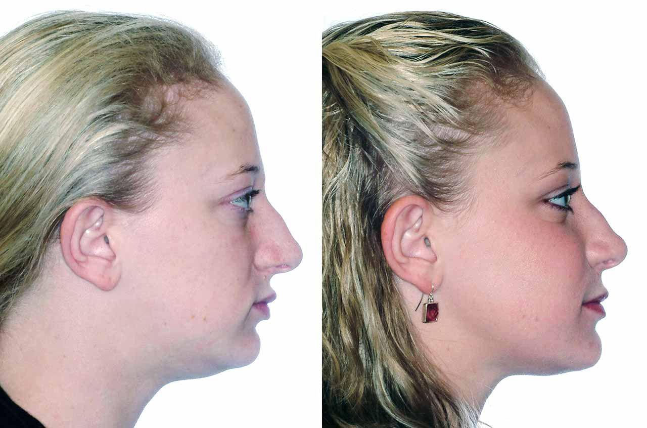 Corrective Jaw Surgery Corrective Jaw Or Orthognathic Surgery