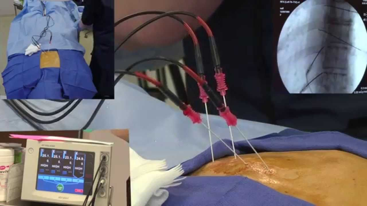 Harvard Trained Vein Doctor (With images) Veins