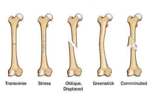 Broken Bones And How They Heal Bone Fracture Broken Bone Bone Healing