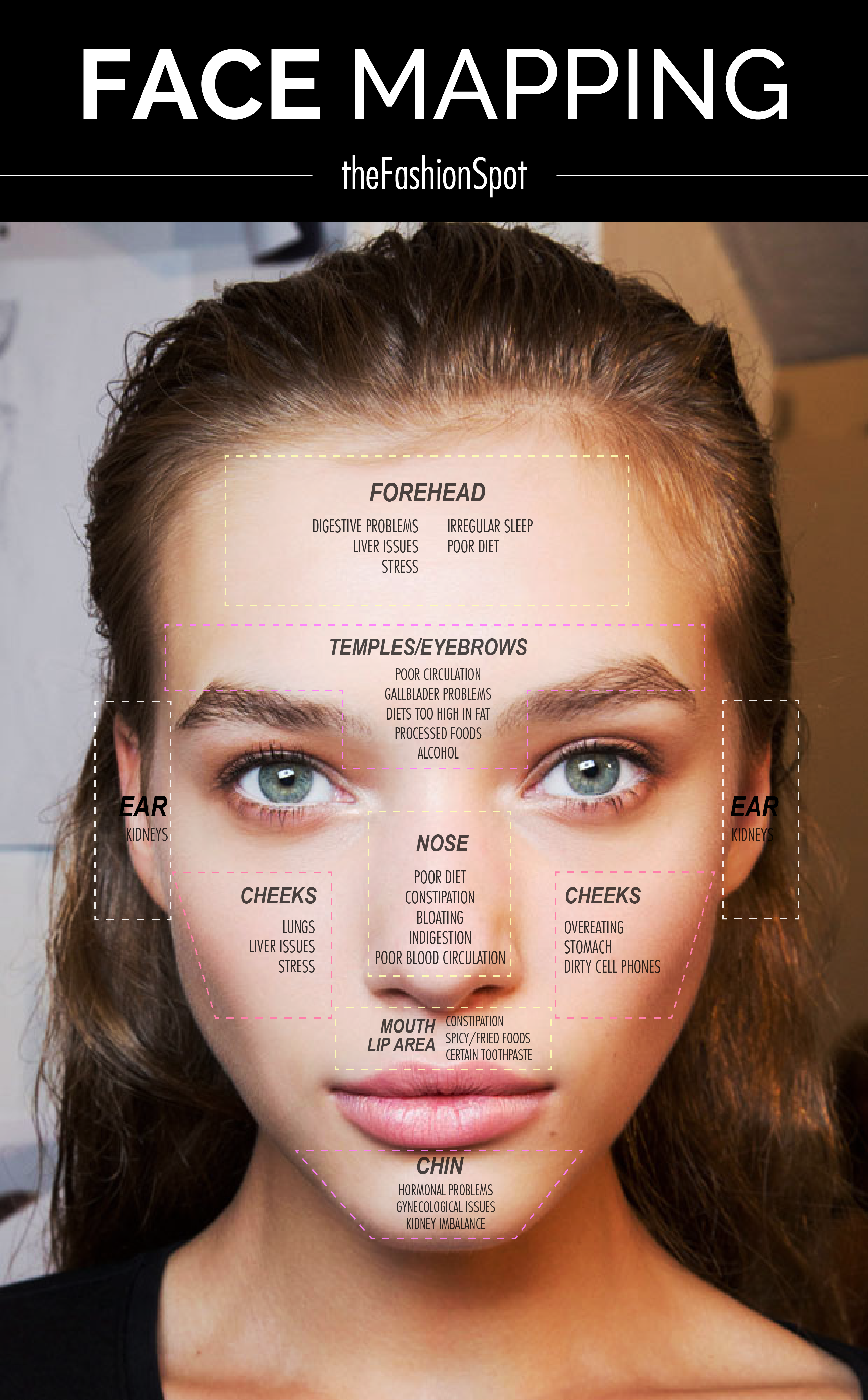 What Causes Acne Diagram 3 Types Of Faults Face Mapping Your Beauty Pinterest Makeup
