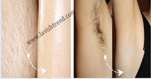 Permanent Underarm Hair Removal Naturally