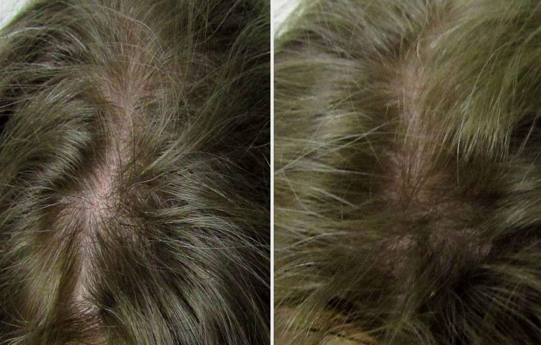 Derma Stimulation Treatment (DST)   Beauty Care Nederland (BCN)