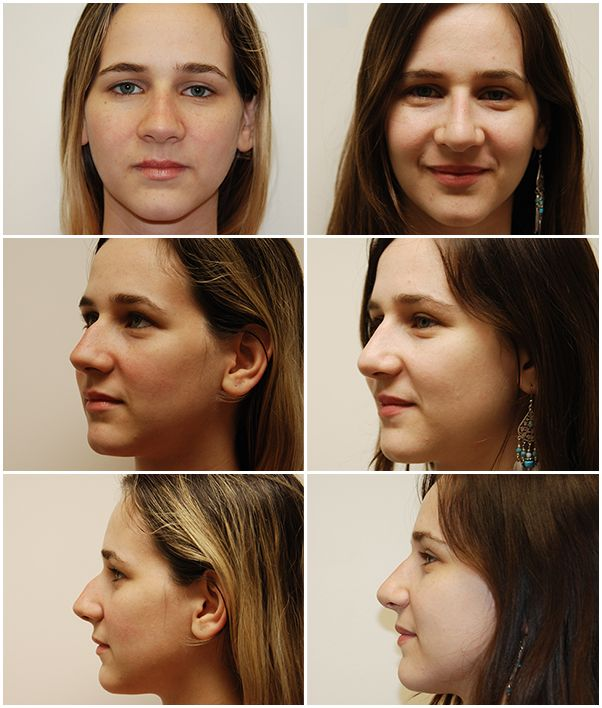 Pin by Yasmee Bruha on nose plastic surgery   Nose surgery