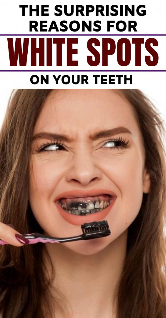 Weiße Flecken auf den Zähnen führen dazu, dass die Leute selbstbewusst grinsen. Offensichtlich,…   – Natural Medicine
