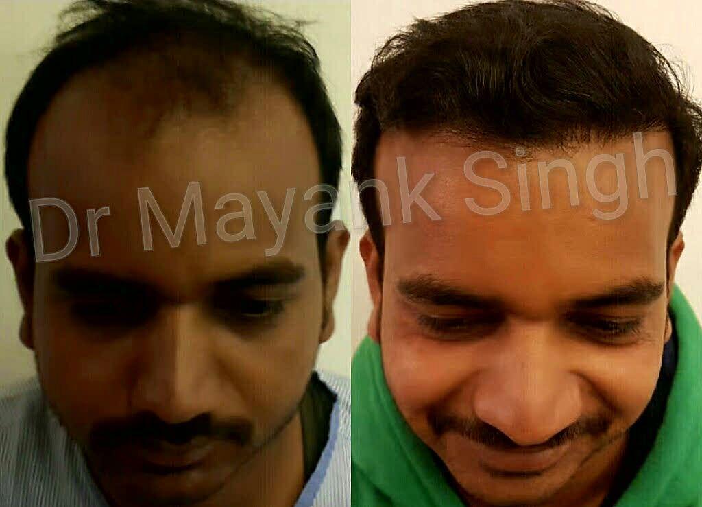 Cost of Hair Transplant in Delhi | Hair Transplant Cost in Delhi