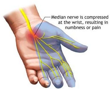 Carpal Tunnel Syndrome (CTS)  It is important to note that additional compression of the median nerve anywhere along its path, from the nerve roots in the neck to the forearm, can predispose, initiate, or exacerbate carpal tunnel syndrome; therefore, it is important to examine and treat the nerve along its course.