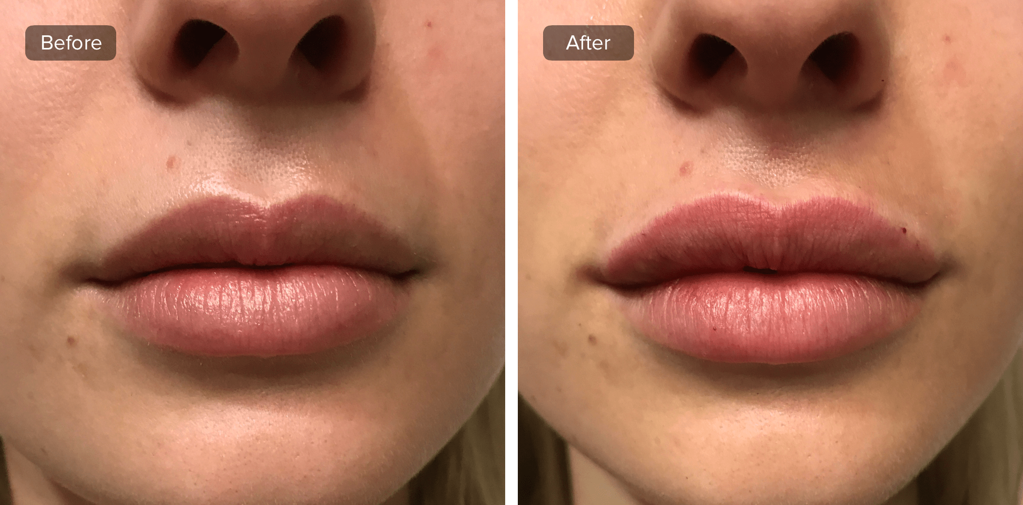 How Long Do Lip Injections Last Lip Injections Lip Augmentation Lips Inspiration