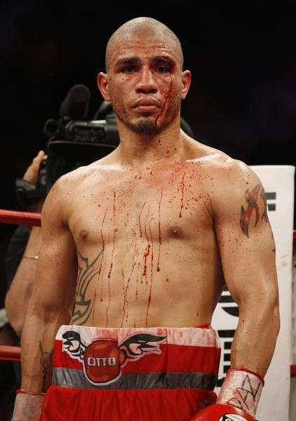 Miguel Cotto will use 'the fundamentals of boxing' to beat Delvin Rodríguez