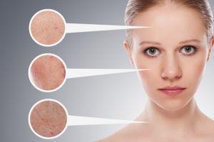 huidproblemen gezicht