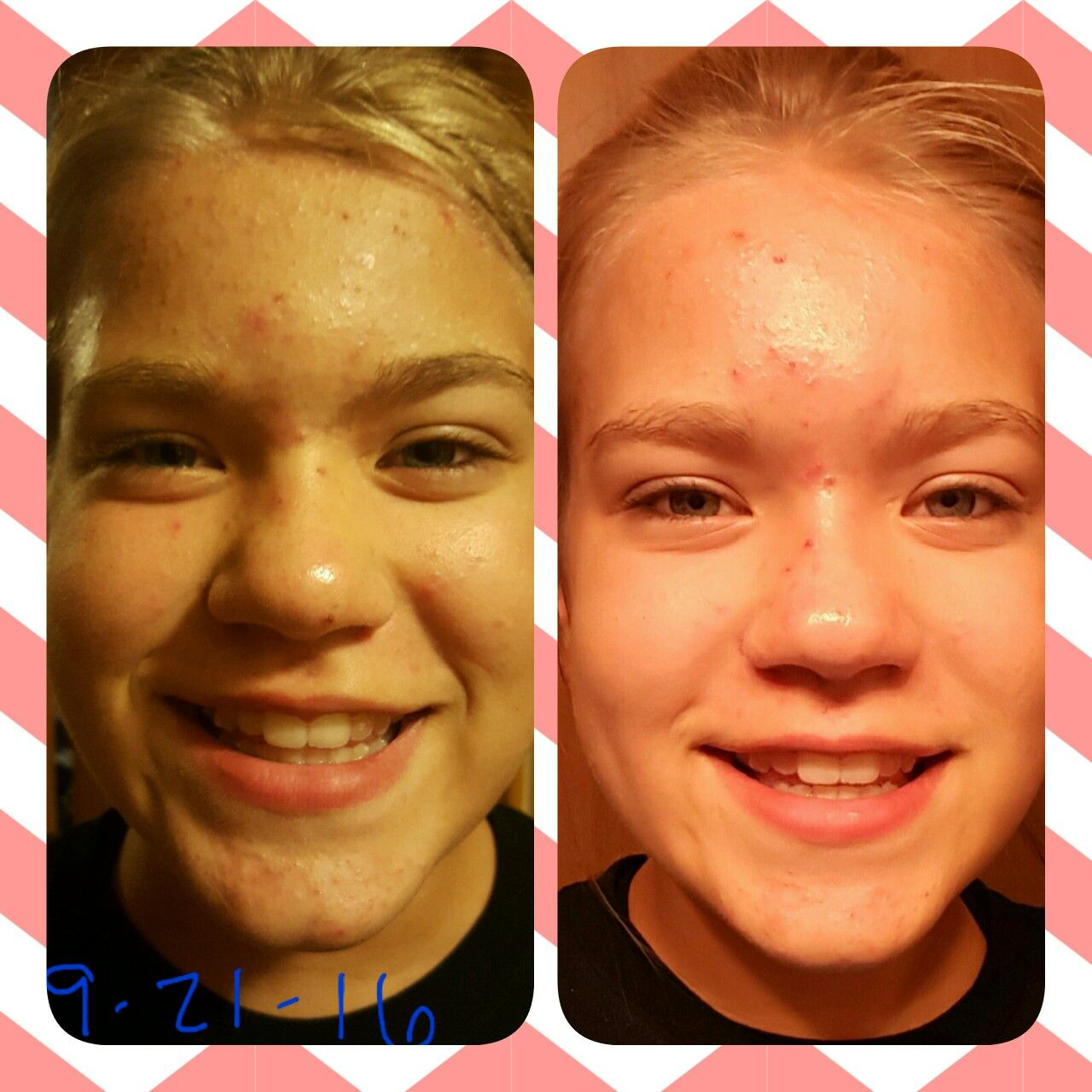 13 Year Old Used Younique Royalty Skin Care Twice A Day For 2 Weeks Dramatic Results Younique Royalty Skin Care Younique Skin Care