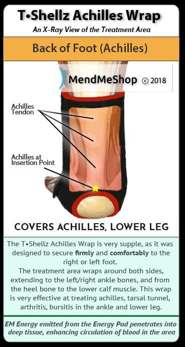 Treatment Of Achilles Tendonitis Pain