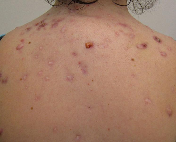 144c3d087ed1d40000c10e6df5efbbdb - How To Get Rid Of Chest Acne And Scars