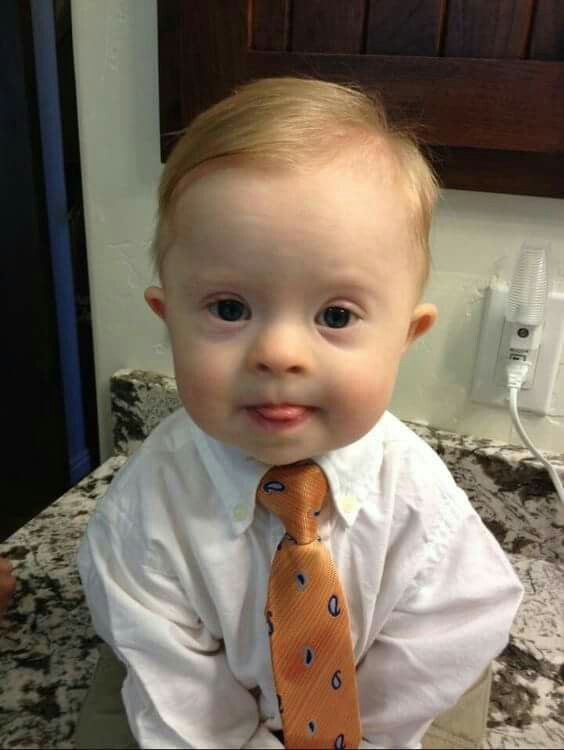 This Sweet Baby Has Downs Syndrome Is He Not The Cutest Dont You