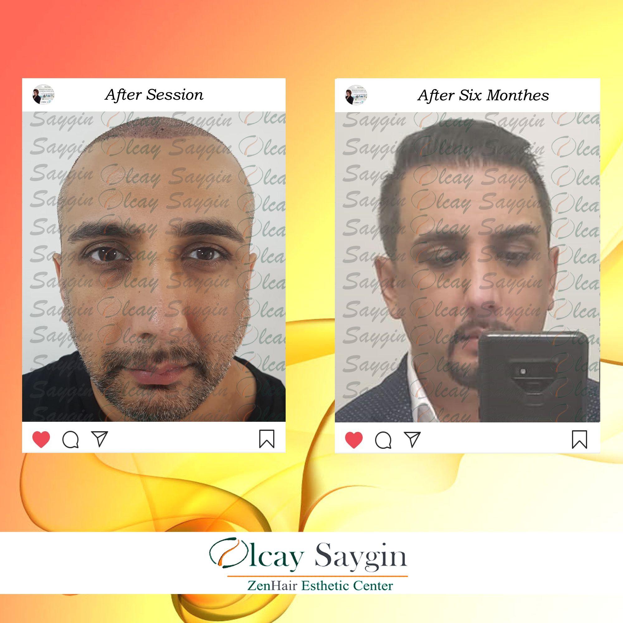 Best Hair Transplant Doctor in Turkey Olcay Saygin Hair