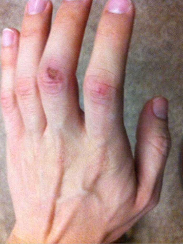 matthew gray gubler fireplace grate hand injury matthew gray