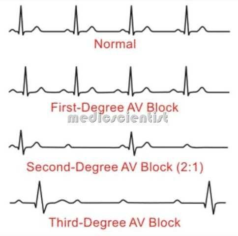 second degree heart block First degree AV block,Second degree AV - 2 1 degree
