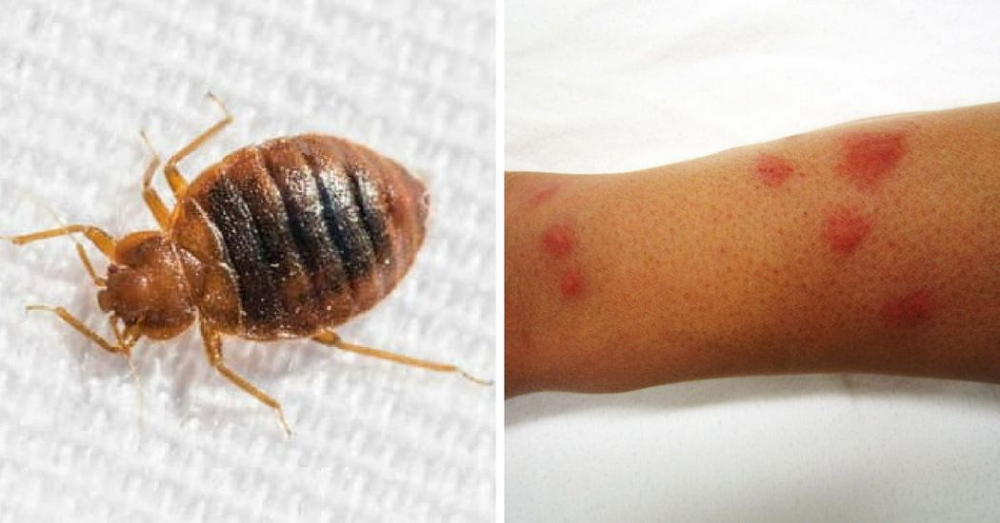 How To Recognize Each One Of These 12 Common Bug Bites