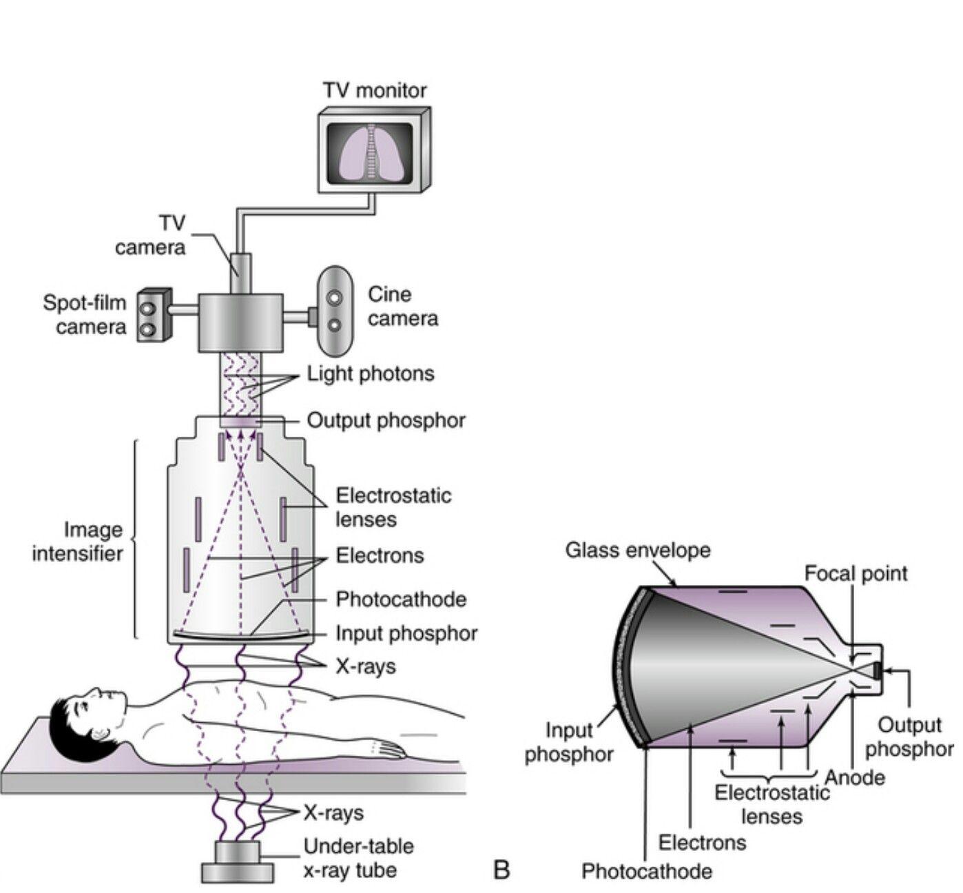 Fluoroscopy system Radiology imaging, Radiology student