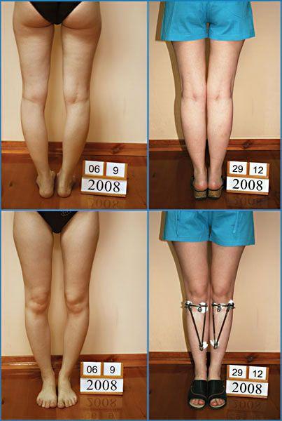 Vida guerra pantyhose legs
