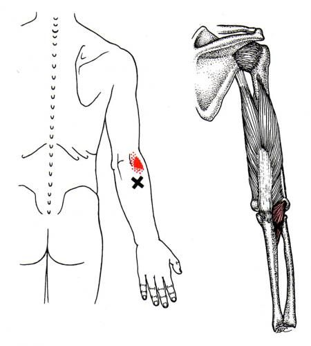 Anconeus   The Trigger Point & Referred Pain Guide   Health ...