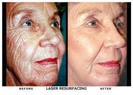 Laser Resurfacing For Wrinkles Laser Resurfacing Acne Scar Removal Acne Scar Removal Surgery