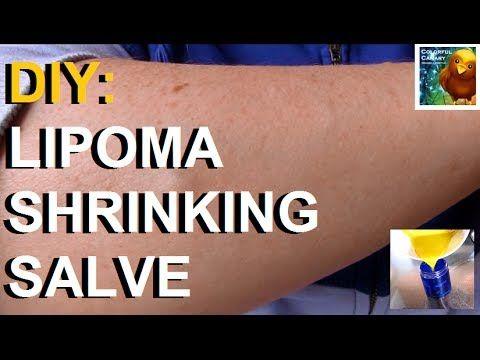 Diy Turmeric Chickweed Salve Shrink Lipomas Naturally Skin Tags Home Remedies Lymph Massage Herbal Salves