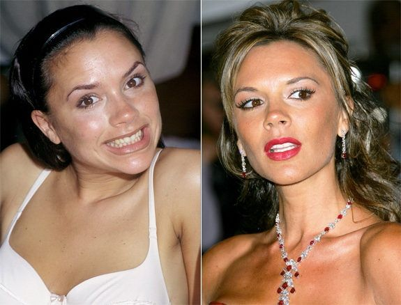 Victoria Beckham really benefited from whitening.  This is an affordable option for most people with big payoffs.  www.advanced-smiles.com