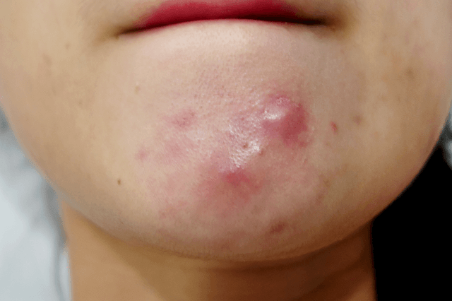 What Is Cystic Acne On Chin And How Do You Get Rid Of It Cystic Acne On Chin Chin Acne Cystic Acne