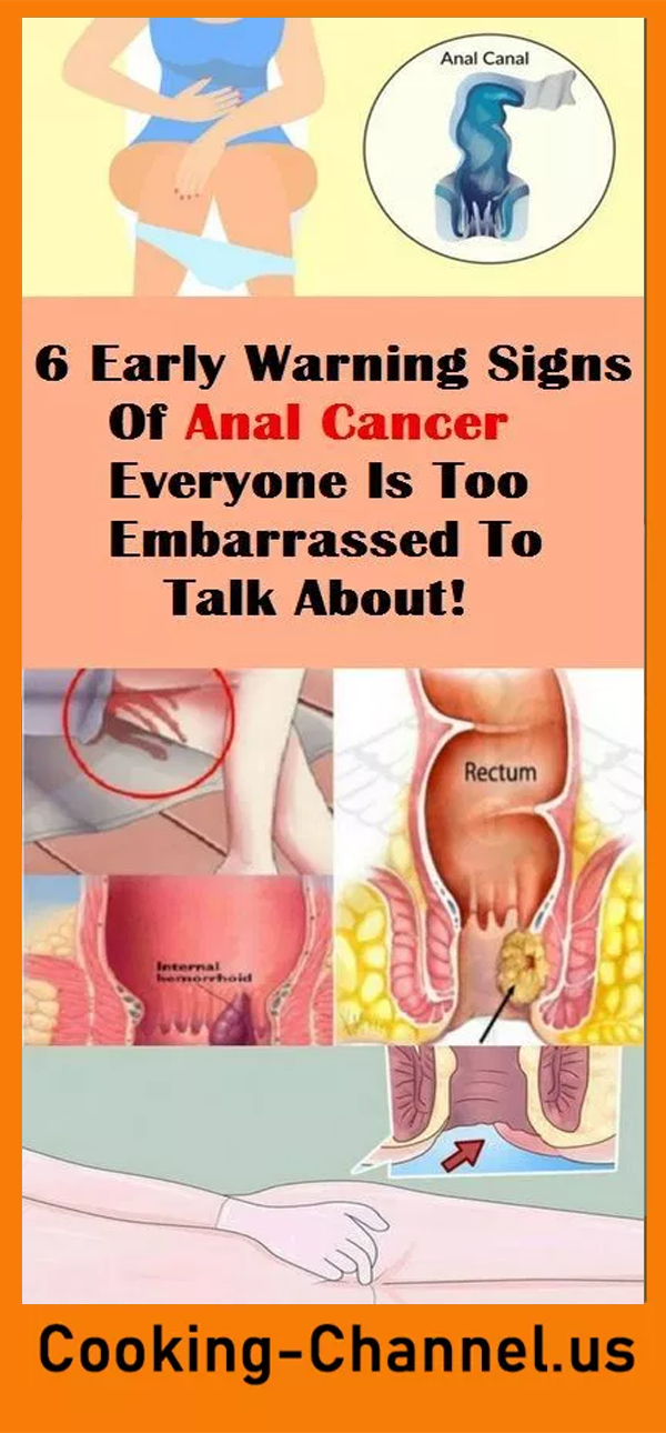 What are symptoms of anal cancer — 1
