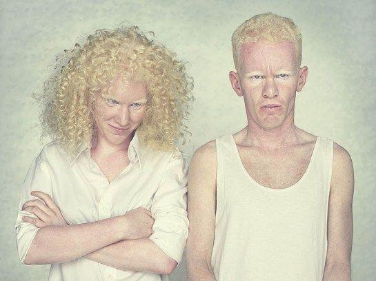 Wewastetime Selective Procrastination Albino Model Albinism Albino Human
