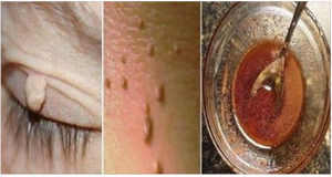 Elimina fácilmente cualquier Fibroma o Verruga con un solo ingrediente…