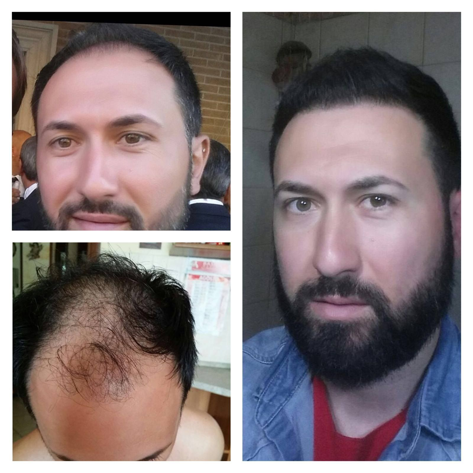 Before After Hair Transplantation Sac Ekimi Oncesi Ve Sonrasi