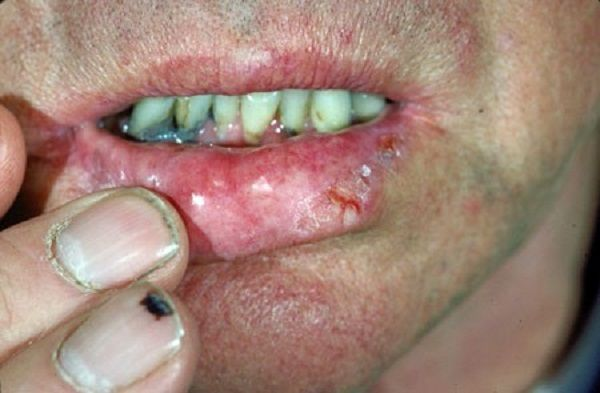 skin cancer on lip health pictures of cancer pictures health