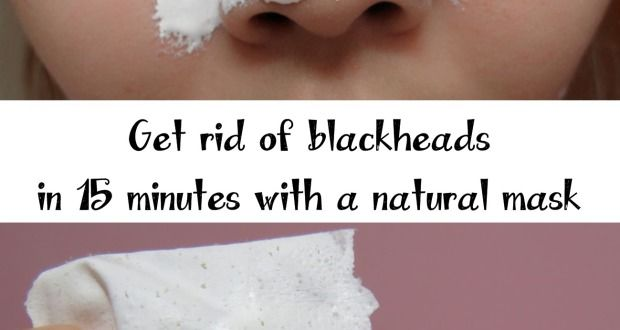 Homemade facial for blackheads, his wife olivia wilder takes black penis