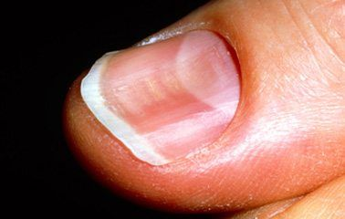 What Are Spoon Shaped Nails A Sign Of