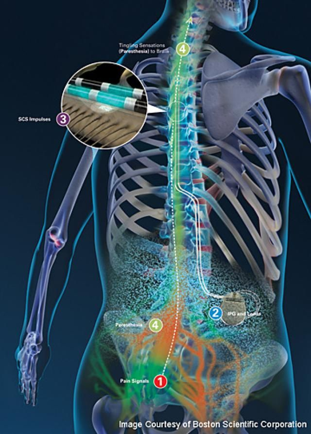 How Neurostimulation Works Spinal Cord Spinal Cord Stimulator Spinal