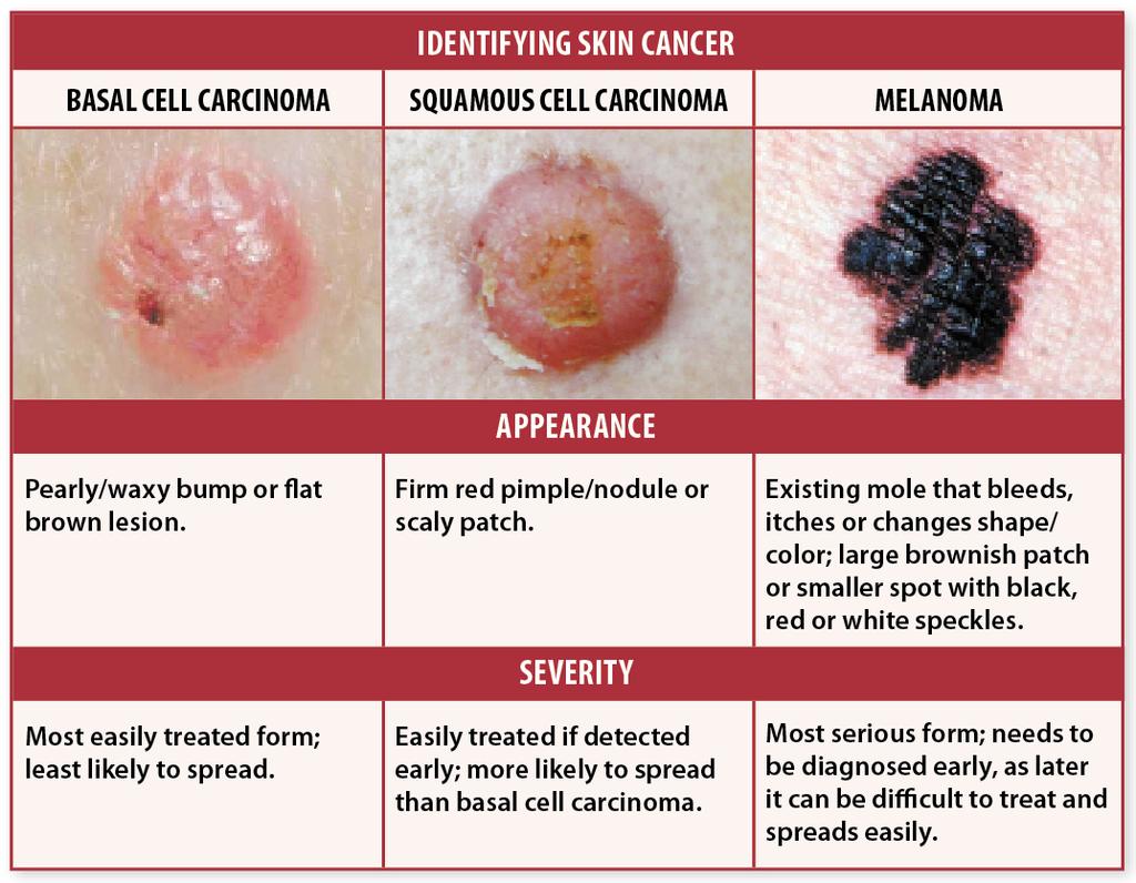 Pin On Skincare