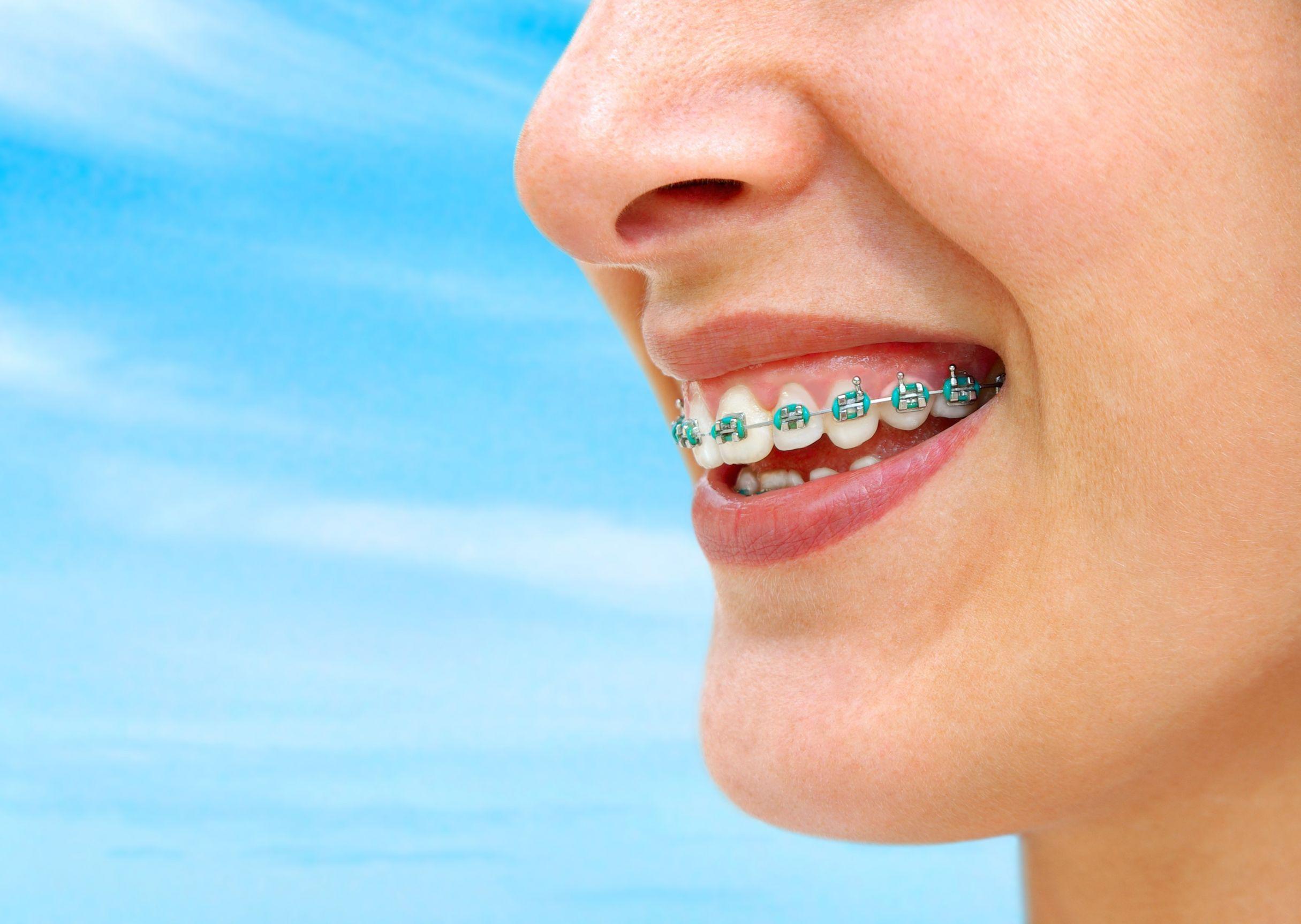 17 best ideas about orthodontic treatment on pinterest