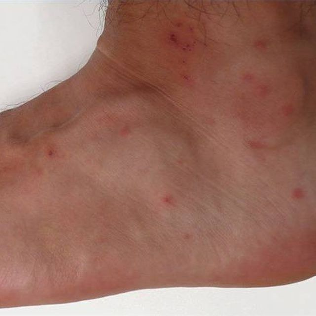 chigger bites on an ankle things i love pinterest chigger repellant spider bites and. Black Bedroom Furniture Sets. Home Design Ideas