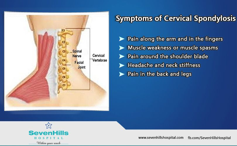 In Cervical Spondylosis, most people do not experience any