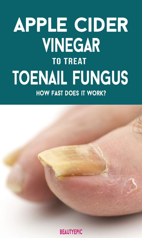 How to Prepare an Apple Cider Vinegar for Toenail Fungus? | Apple cider vinegar  remedies, Toenail fungus remedies, Toenail fungus