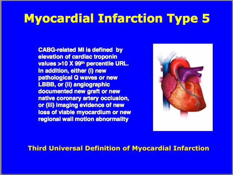 Third universal definition of Myocardial Infarction : Type 5